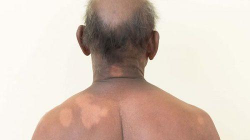 Confirman 36 casos de lepra en Misiones: qué es y cómo se previene esta enfermedad